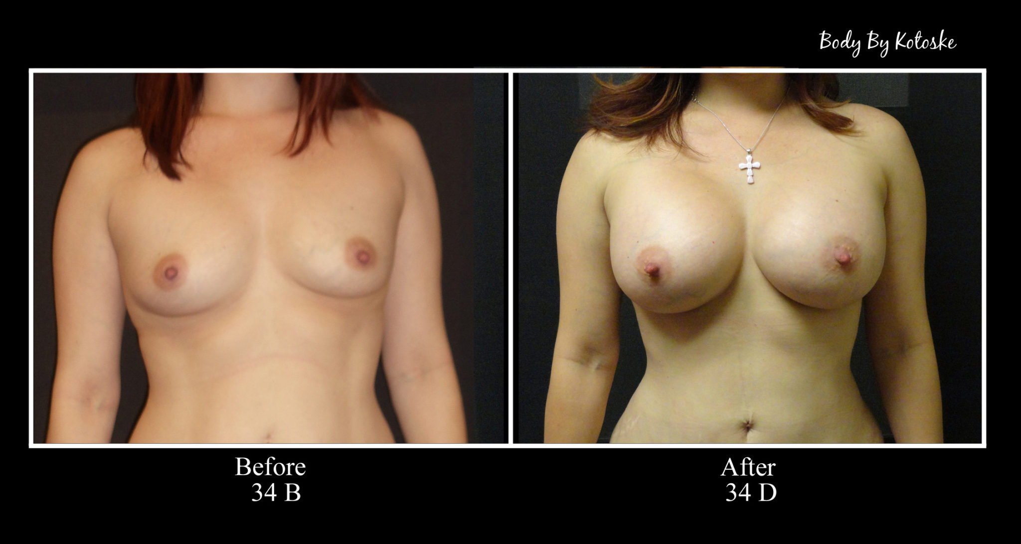 Before and After - Phoenix Cosmetic Surgeon   Body by Kotoske   Phoenix, AZ