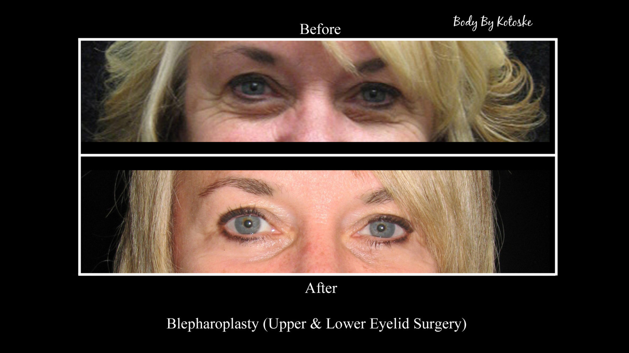 Before and After - Phoenix Cosmetic Surgeon | Body by Kotoske | Phoenix, AZ