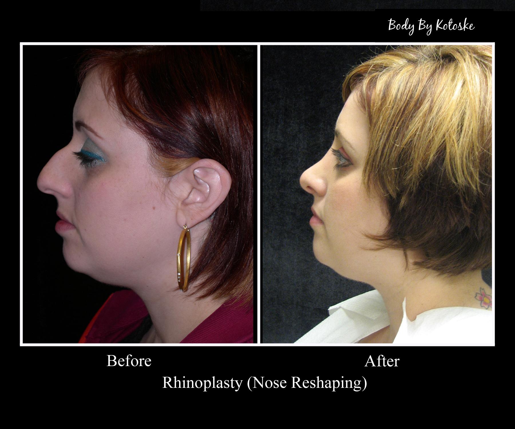 Phoenix Cosmetic Surgeon   Body by Kotoske   Phoenix, AZ